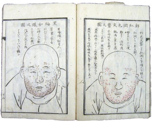 江戸 時代 コレラ